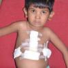 बच्ची के दिल में छेद का सफल ऑपरेशन