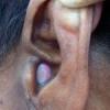 पीएमसीएच में एंजियो फाइब्रोमा का सफल ऑपरेशन