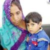 चार साल की बच्ची के गाल ब्लेडर का सफल ऑपरेशन